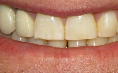 Неровная поверхность зубов - Стоматология Линия Улыбки