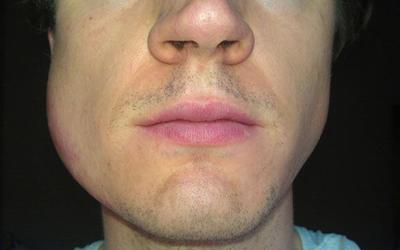 Отек лица - Стоматология Линия Улыбки