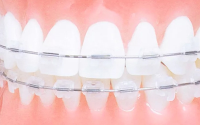 Пластиковые брекеты - Стоматология Линия Улыбки