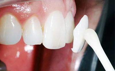 Плюс использования прямых виниров - Стоматология Линия Улыбки