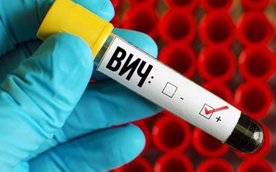 Противопоказание к установке имплантов - ВИЧ - Стоматология Линия Улыбки