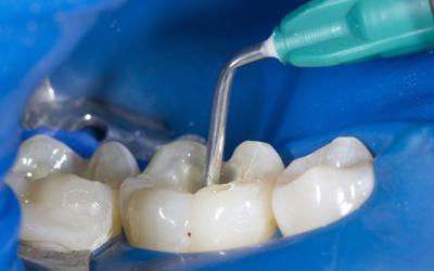 Процесс герметизации фиссур - Стоматология Линия Улыбки