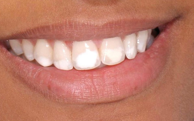 Пятнистая системна гипоплазии - Стоматология Линия Улыбки