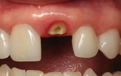 Разрушение корня зуба - Стоматология Линия Улыбки