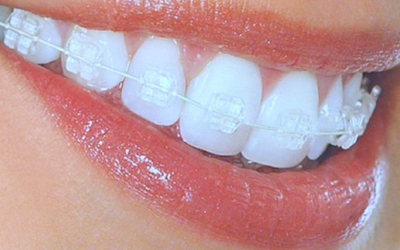 Сапфировые брекеты - Стоматология Линия Улыбки
