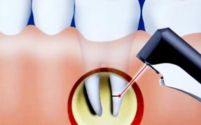 Цистэктомия - Стоматология Линия Улыбки