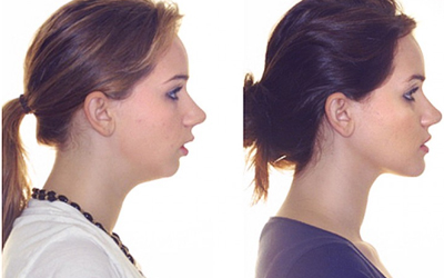 Запущенный случай мезиального прикуса - Стоматология Линия Улыбки