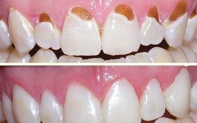 Прикорневой кариес - Стоматология Линия Улыбки