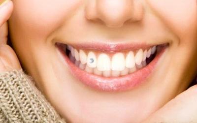 Срок службы страз - Стоматология Линия Улыбки