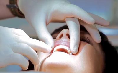 Стоматологический клей для страз - Стоматология Линия Улыбки