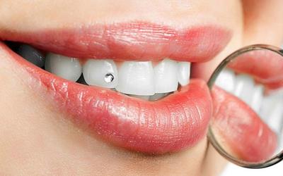 Стразы на зубы - Стоматология Линия Улыбки