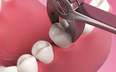 Альвеолит - Стоматология Линия Улыбки
