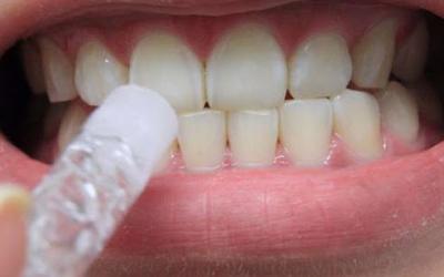 Аппликации при белых пятнах на зубах - Стоматология Линия Улыбки