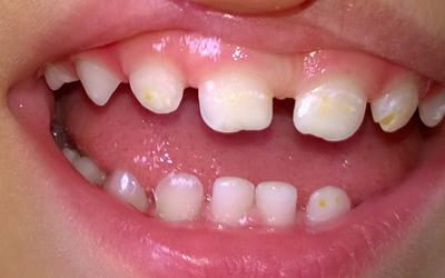 Белые пятна - Стоматология Линия Улыбки