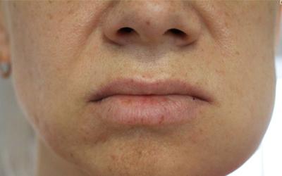 Что будет, если не лечить альвеолит - Стоматология Линия Улыбки