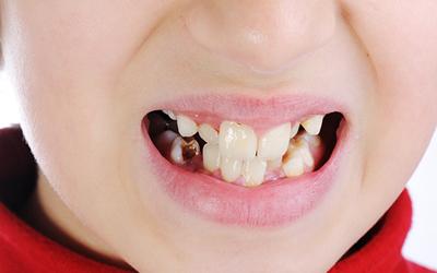 Кариес молочных зубов - Стоматология Линия Улыбки