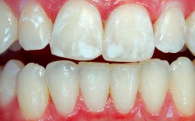 Кариес в стадии белого пятна - Стоматология Линия Улыбки
