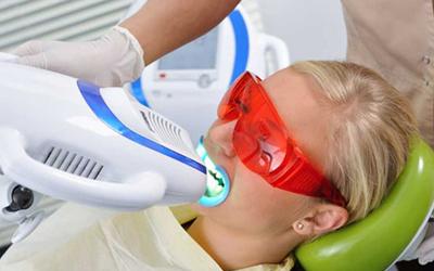 Отбеливание зубов Beyond - Стоматология Линия Улыбки