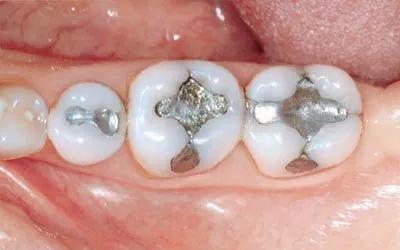 Пломбы на зубы - Стоматология Линия Улыбки