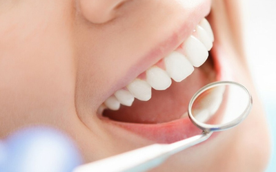 Результат отбеливания - Стоматология Линия Улыбки