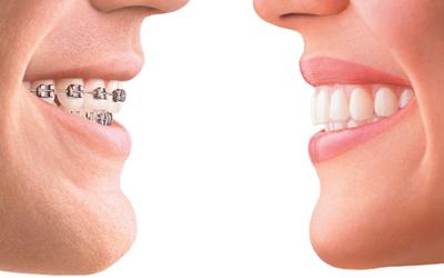 Титановые брекеты - Стоматология Линия Улыбки