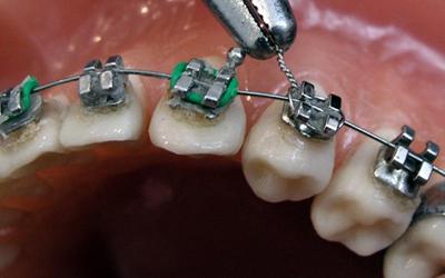 Устройство титановых брекетов - Стоматология Линия Улыбки