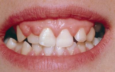 Заболевания десен - Стоматология Линия Улыбки