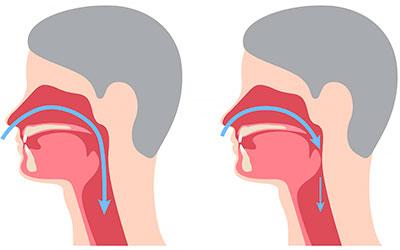 Нарушение работы органов дыхания - Стоматология Линия Улыбки