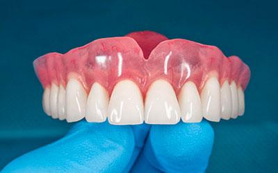 Изготовить съемный протез - Стоматология Линия Улыбки