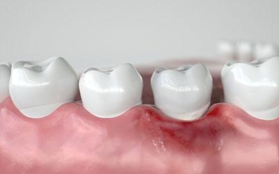 Воспаление продолжит распространяться - Стоматология Линия Улыбки