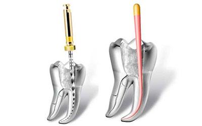 Гуттаперча - Стоматология Линия Улыбки