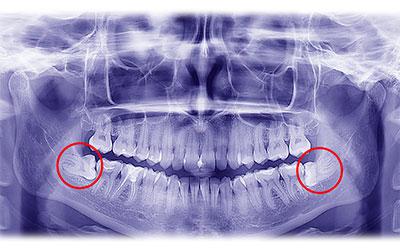 Удаленное расположение - Стоматология Линия Улыбки