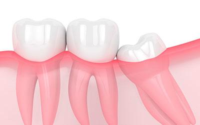 Частичное прорезывание - Стоматология Линия Улыбки