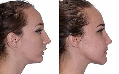 Как распознать нарушение - Стоматология Линия Улыбки