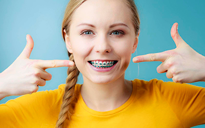 Ношение брекетов в период выравнивания зубов - Стоматология Линия Улыбки