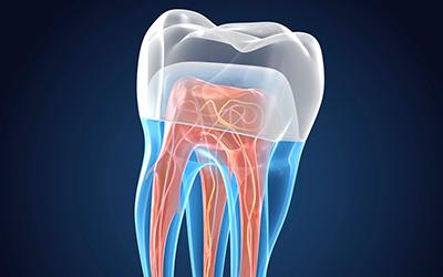 Восстановление естественной минеральной структуры - Стоматология Линия Улыбки