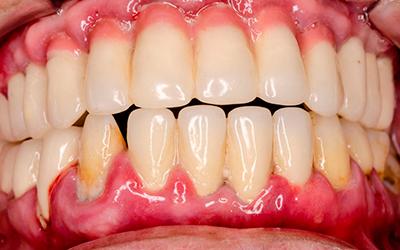 Пародонтит - Стоматология Линия Улыбки