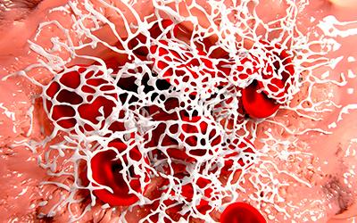 Фибрин в виде белесого налета - Стоматология Линия Улыбки