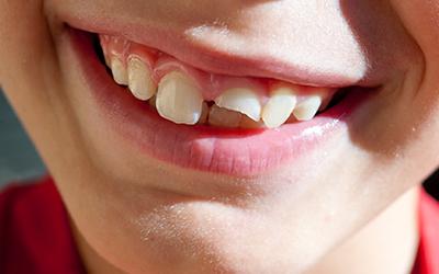 Перелом коронки - Стоматология Линия Улыбки