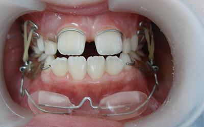 Снятие выравнивающего аппарата - Стоматология Линия Улыбки