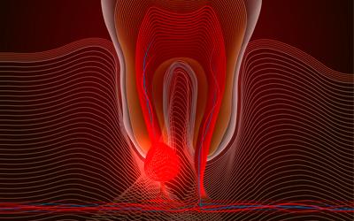 Аномальные факторы - Стоматология Линия Улыбки