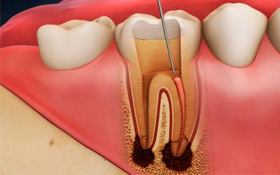 Десневые каналы - Стоматология Линия Улыбки