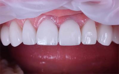 Композитные виниры - Стоматология Линия Улыбки
