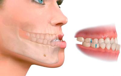 Мезиальное искревление - Стоматология Линия Улыбки
