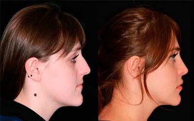 Нарушениями эстетики лица - Стоматология Линия Улыбки