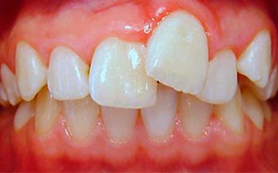 Серьезные аномалии прикуса - Стоматология Линия Улыбки