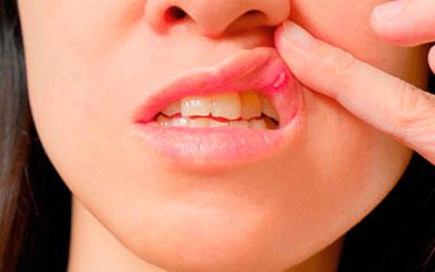 Афтозный стоматит у взрослых - Стоматология Линия Улыбки