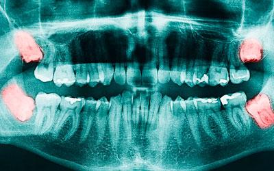 Классификация резорбции - Стоматология Линия Улыбки