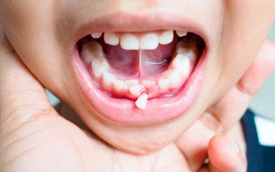 Кровоточивость пораженной десны - Стоматология «Линия Улыбки»