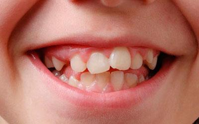 Низкая степень минерализации зубов - Стоматология Линия Улыбки